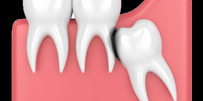 wisdom tooth surgery Singapore